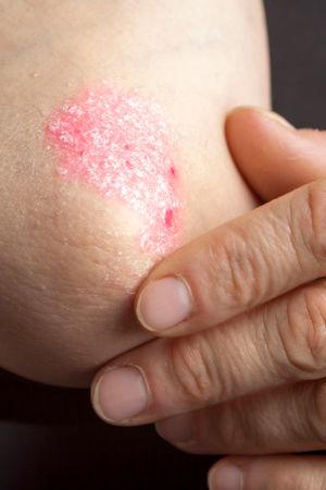 Psoriasis (Schuppenflechte), eine Erkrankung der Haut